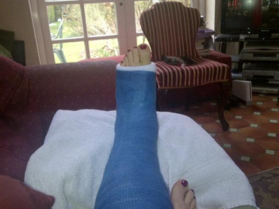 Julie's broken ankle