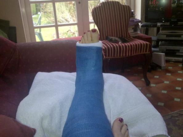 Julie's broken ankle